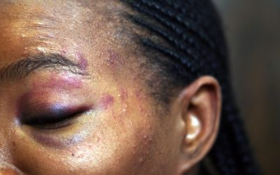 Violence against women in Cameroon
